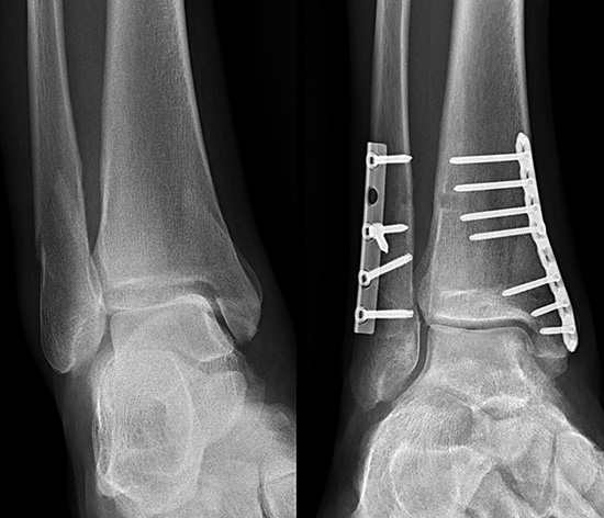 Röntgenbild Sprunggelenkschirurgie